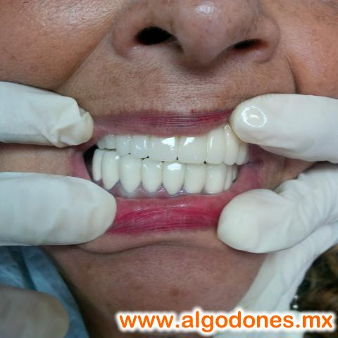 Leon Dental...Dental Treatments. in Los Algodones