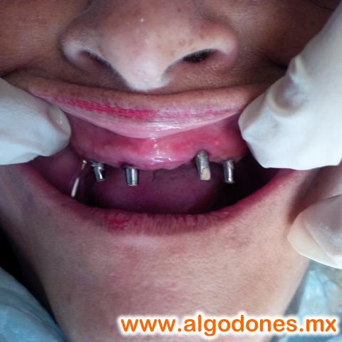 Leon Dental...Dental Treatments. in Los Algodones