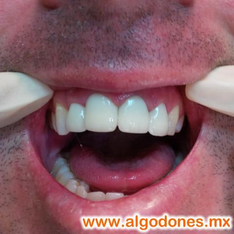 Leon Dental...Dental Treatments.