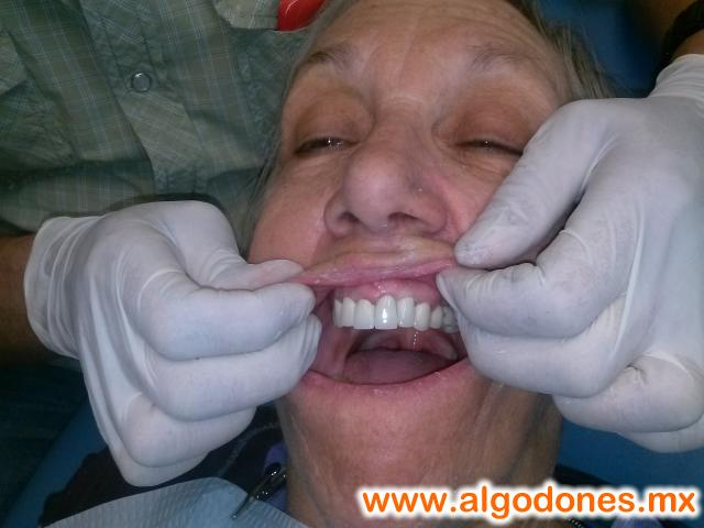 Alonso Ceballos DDS. Dental Treatments. in Los Algodones