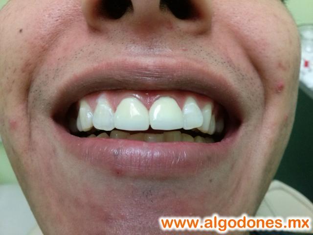 Dental Work Dr. Yesenia Pompa