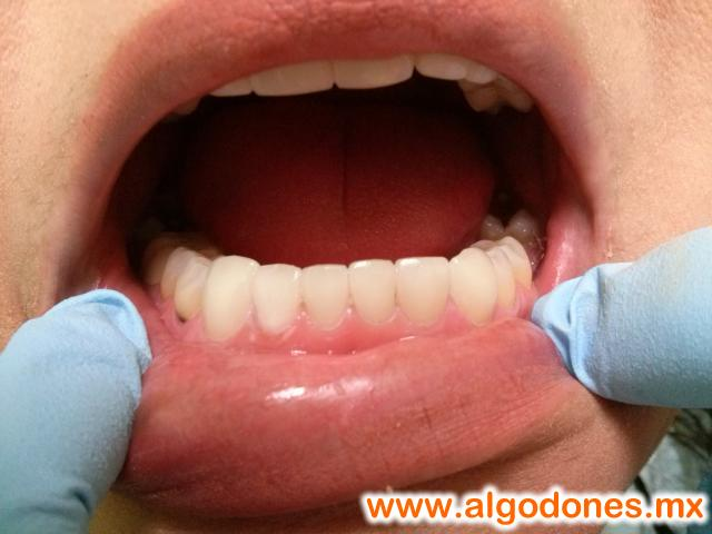 Zirconia Crowns Dra. Yesenia Pompa in Los Algodones