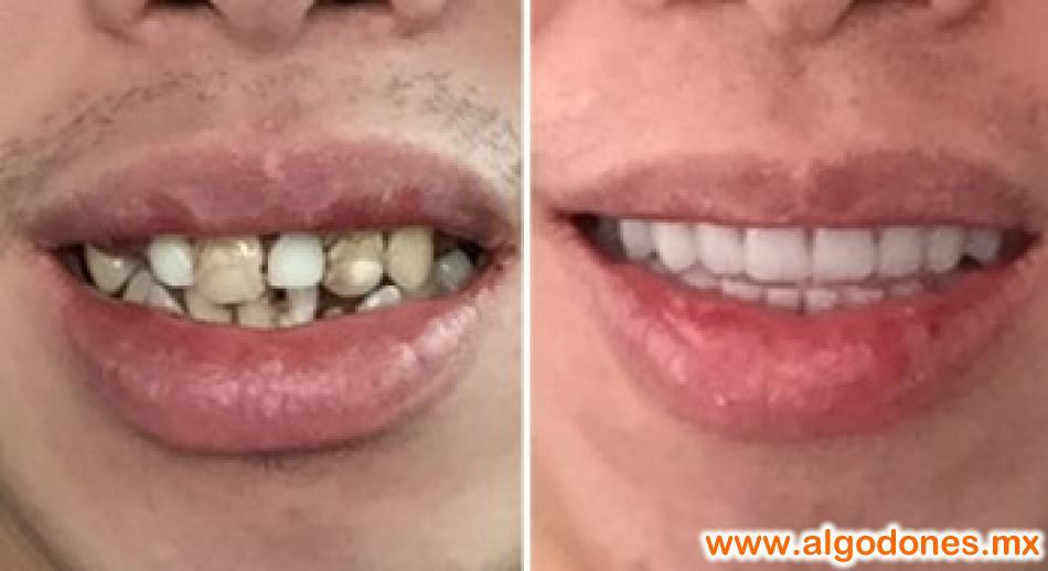 Dental Solutions Xochipilli Bojorquez DDS