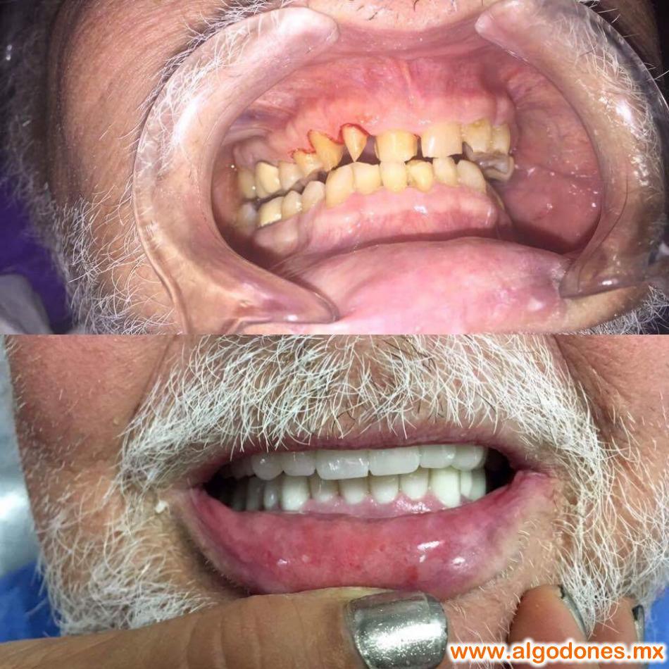 Dental Treatment DDS. Herminia Marin